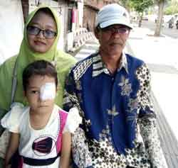 Kanker Mata Retina Blastoma Mutiara Sari